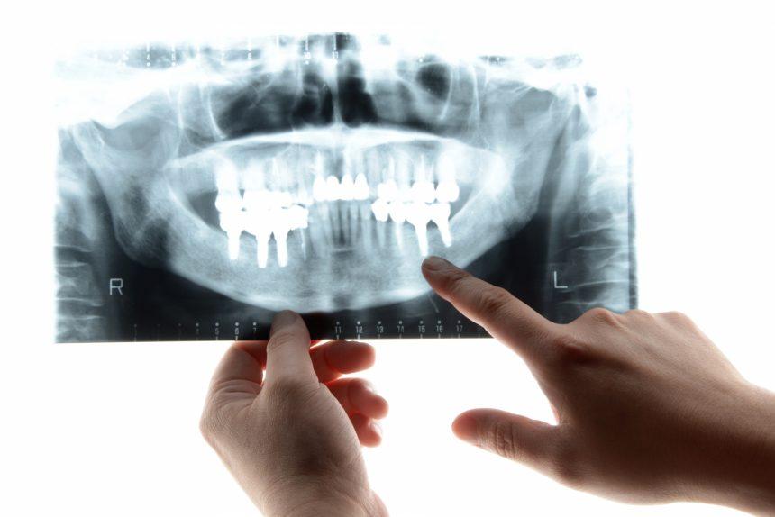 インプラント歯科医院